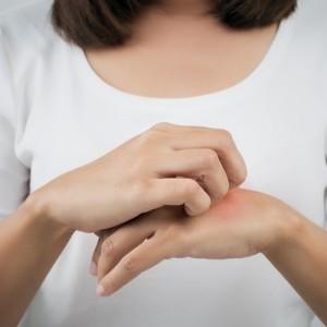 Dermatitis atopica, alergias de la piel